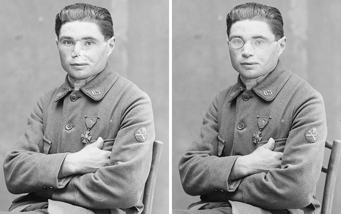 Fascinating Before & After Pics Show How This Woman Changed Lives Of WWI Veterans By 'Restoring' Their Faces