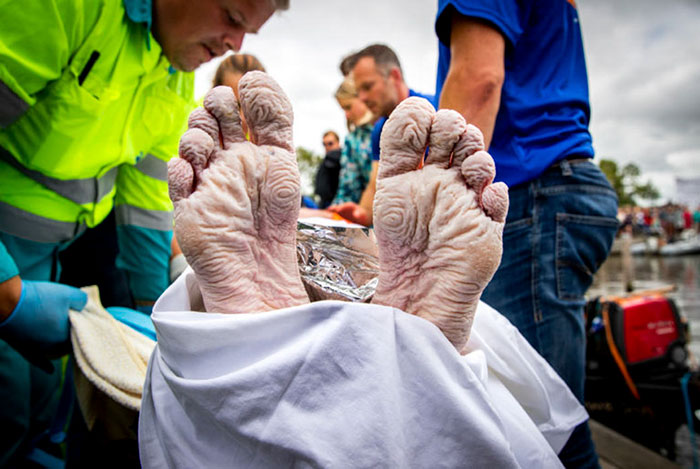 هكذا بدَت يدا البطل الهولندي مارتن وجسمه بعد أن سبح مسافة 163 كم ولأكثر من أربعة أيام متواصلة، لماذا يا تُرى؟
