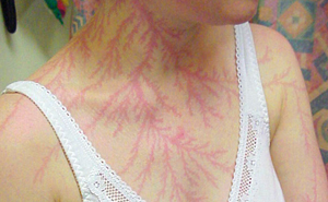 19 People Who Survived Getting Struck By Lightning Show What It Does To Your Skin