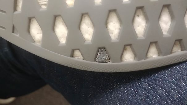 This Pebble That Got Stuck In The Sole Of My Shoe