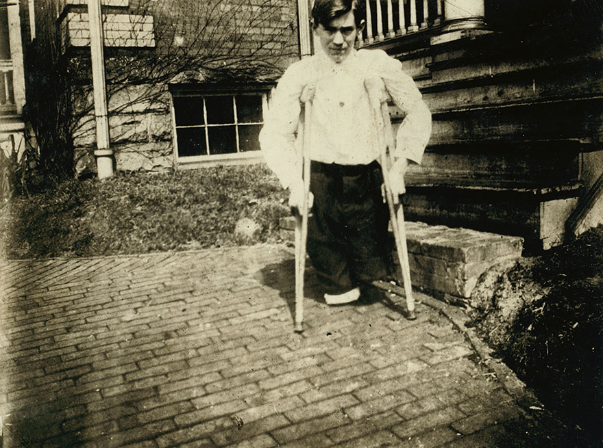 Frank P......., Whose Legs Were Cut Off By A Motor Car In A Coal Mine In West Virginia When He Was 14 Years 10 Months Of Age. Location: Monongah, West Virginia