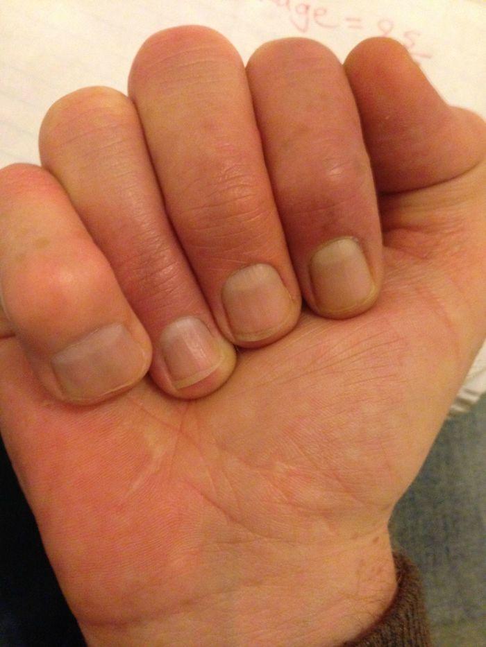 Mi dedo meñique es enorme