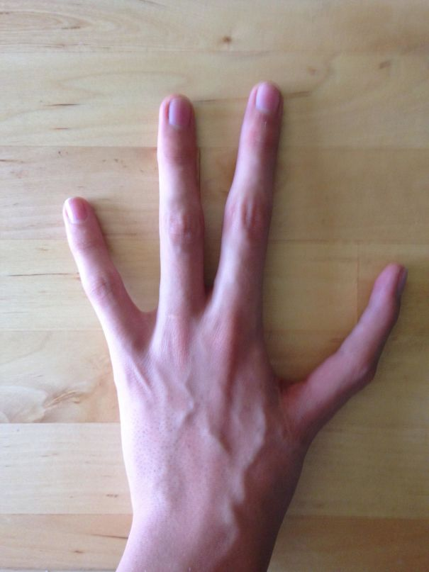 I Have Only Four Fingers On My Left Hand, And Have And Index Finger Instead Of My Thumb