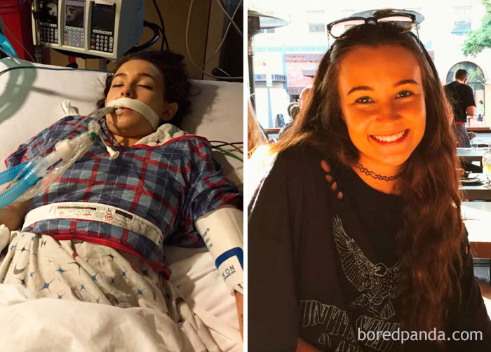 Left Is Me In The ICU From An Overdose. Decided I Was Sick And Tired Of Being Sick And Tired And Am 6 Months Clean And Sober Today