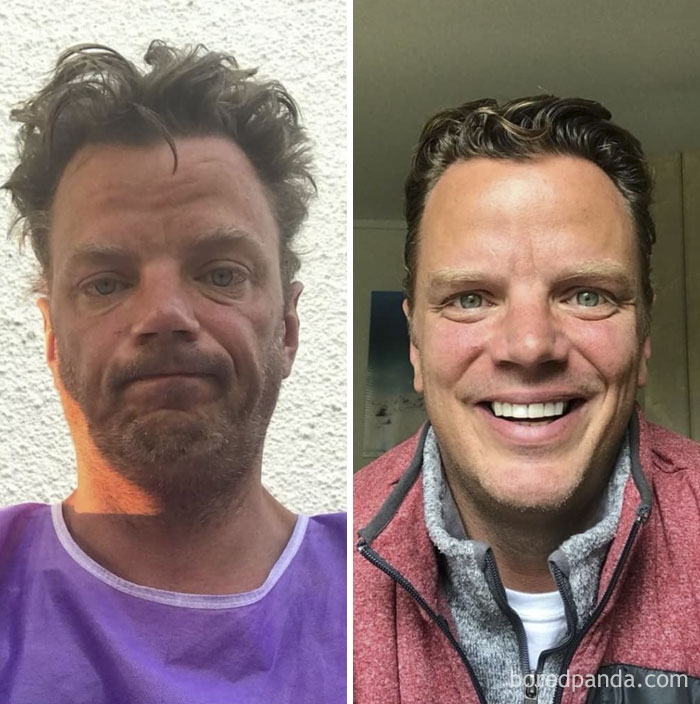 I Took The Picture On The Left Almost 17 Months Ago, Outside An Emergency Room, At Sunrise, Something Told Me I Didn't Want To Forget That Moment. I Forget Easily. I'm Going Public With This Now Simply Because I Need To Advocate For Recovery More