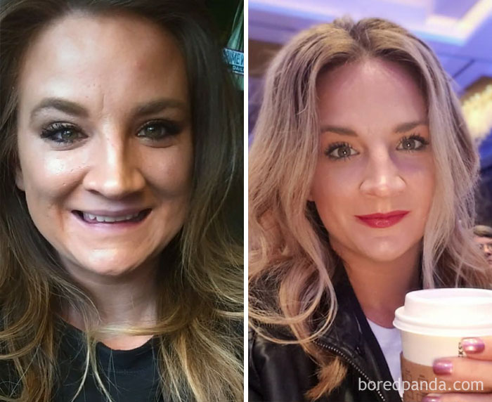 On The Left: 1-4 Bottles Of Wine A Week... Dayum, There's A Lot Of Full Coverage Foundation On That Mug. Eeeek. On The Right, 9 Months Later: Lots Of Infused Water, Bb Cream & Some Contour/Blush. The Difference: Sobriety
