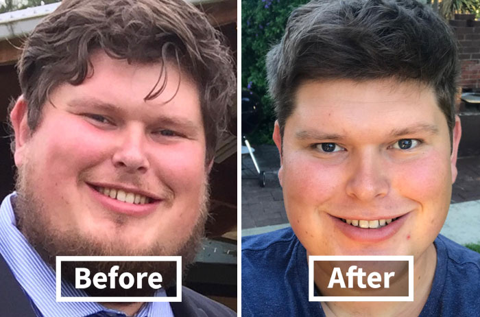 59 Before & After Pics That Show What Happens When You Stop Drinking