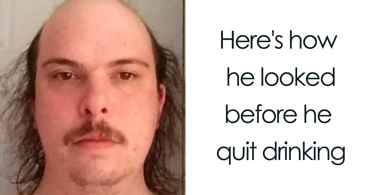 20+ Before & After Pics That Show What Happens When You Stop Drinking