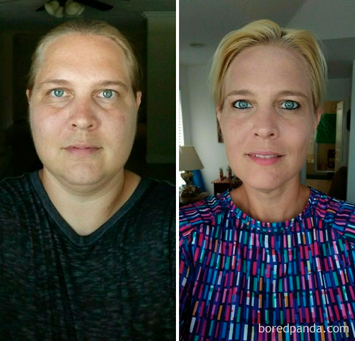79 Lbs Lost In 5 Months