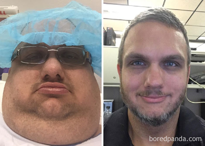20+ Times People Surprised Everyone By Losing So Much Weight They Looked Like A Different Person( New Pics)