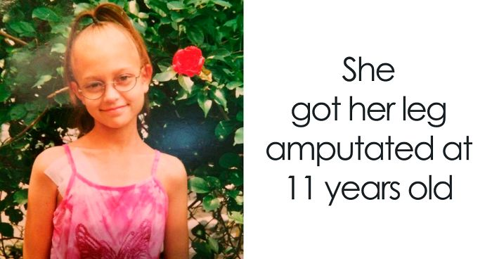 Girl Gets Her Leg Amputated At Age 11 Because Of Cancer, Becomes A Model 20 Years Later
