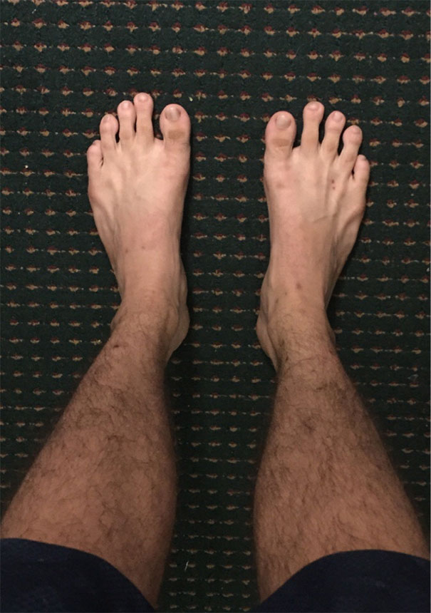 My Big Toe Is... Not So Big