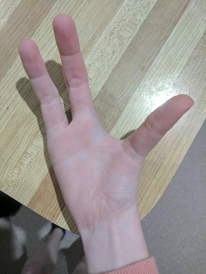 Me faltan dos dedos