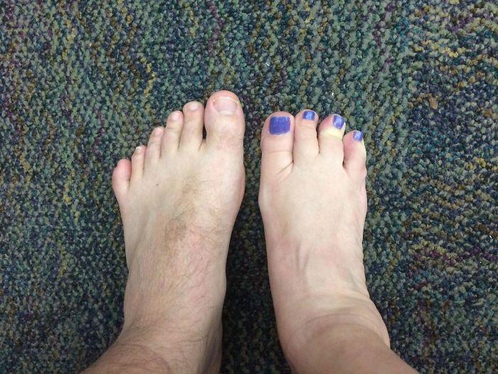 Yo tengo 6 dedos en el pie izquierdo y mi compañera de trabajo 4 en el pie derecho