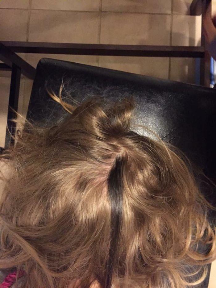 Mi hijo tiene un mechón de pelo muy oscuro