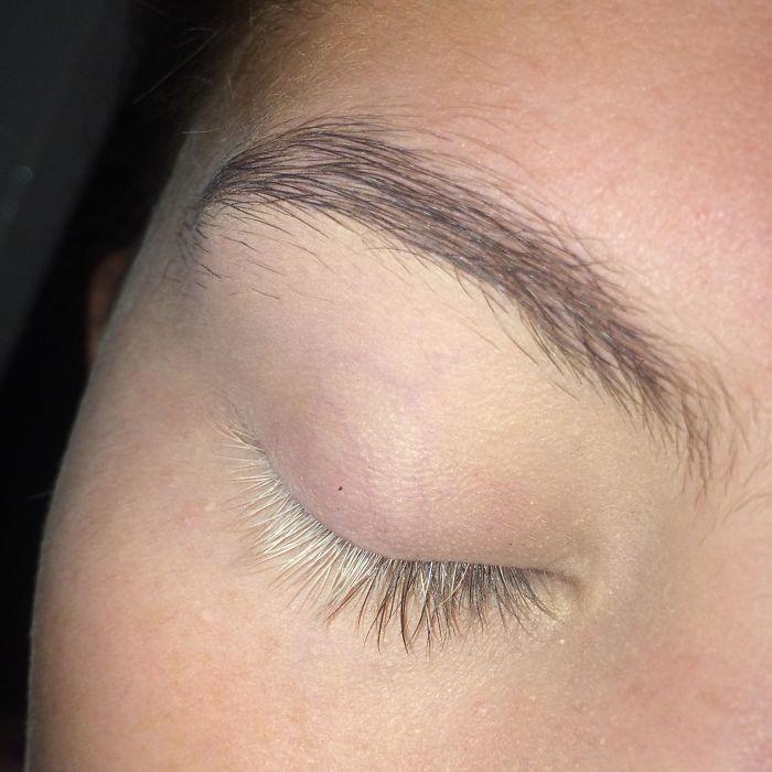 La mitad de mis pestañas en el ojo derecho son blancas