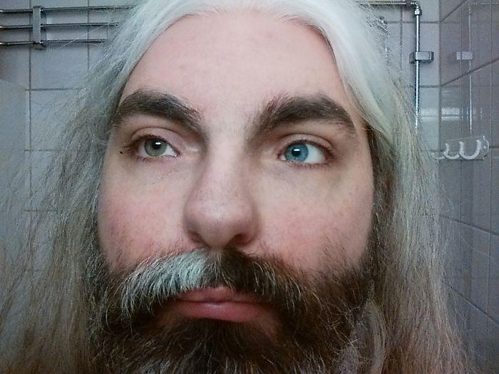 Tengo el síndrome de Waardenburg, que me hace sordo de un oído, mi pelo blanco y mis ojos de distinto color