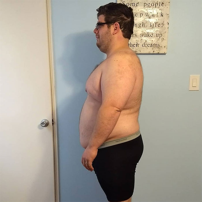 After Neglecting My Body For 10 Years, I Started Making Small Changes And Went From 300 Lbs To 150 Lbs