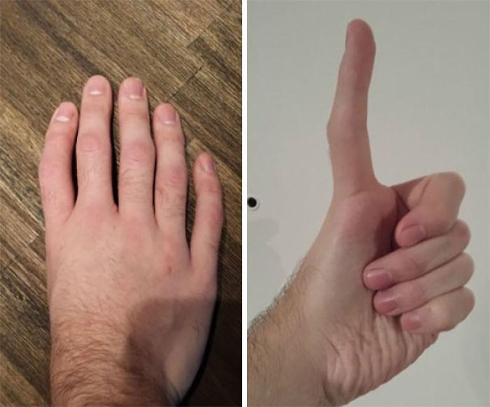 5 dedos y ninguno es un pulgar