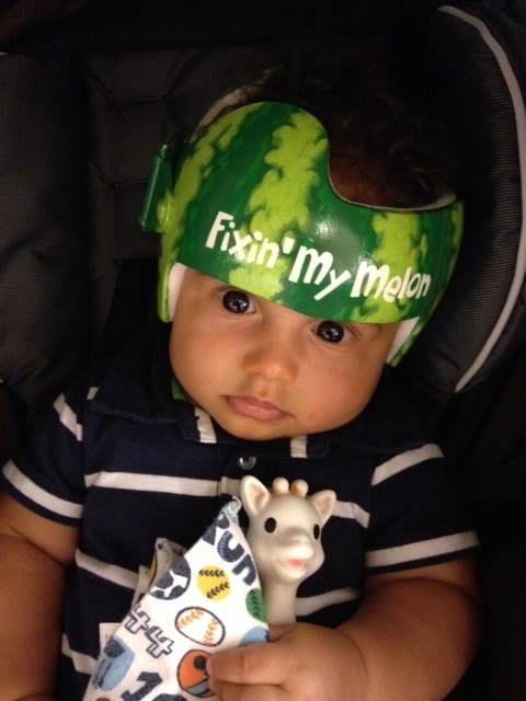 watermelon-helmet-5c0986308a7e3.jpg