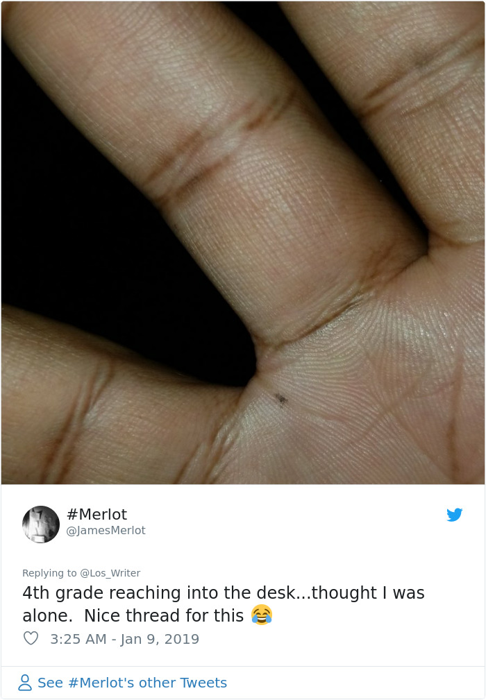 Apparently, Pencil Scars Are A Thing And There Are More People Affected Then You Would Think