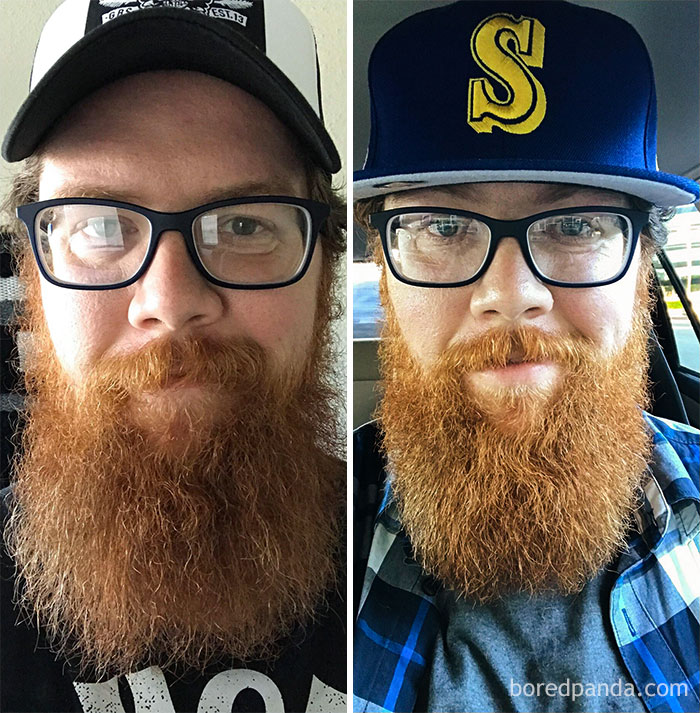 My Before And After