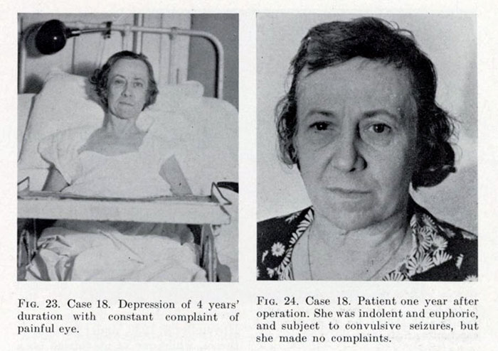 Before-After-Lobotomy-Surgery-Patients-Photos