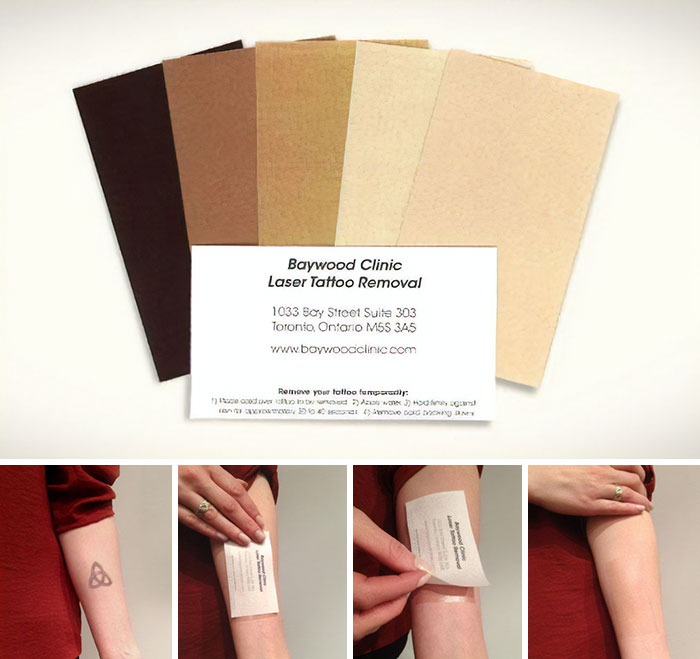 To Promote Their Laser Tattoo Removal Services Baywood Clinic Created These Temporary Tattoo Business Cards