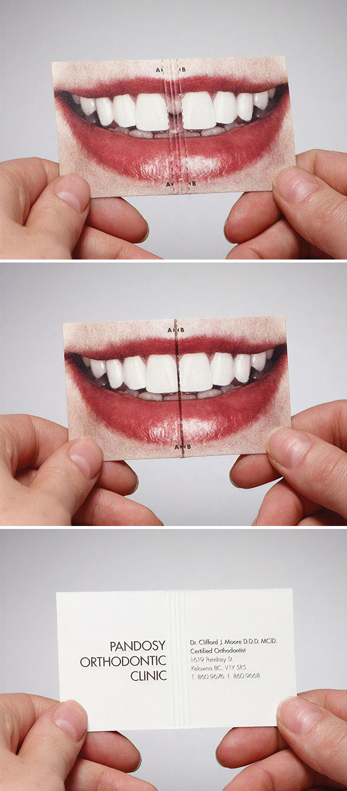 This Creative Business Card Was Done For An Orthodontist. When The Card Is Folded Together, The Gap In The Teeth Disappears