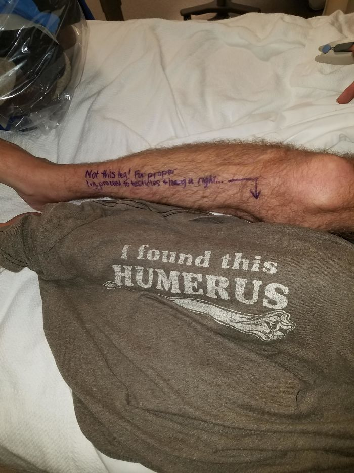 I'm Having My Left Leg Amputated Today. I Wore This Shirt And Wrote This On My Leg For The Surgeons