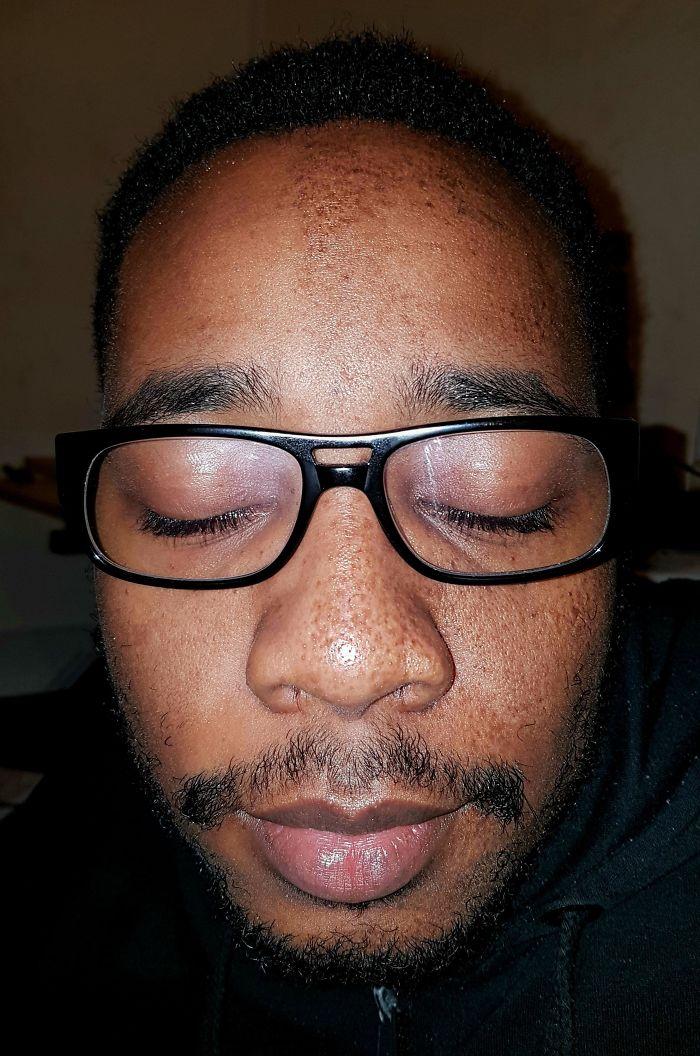Mi novio solo tiene pecas en la mitad de la cara