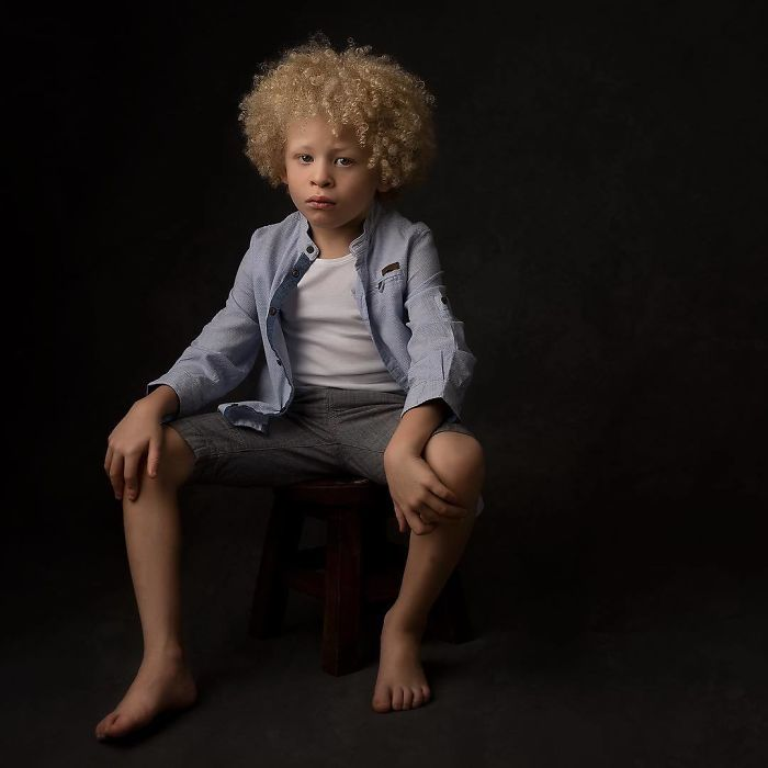 5-Year-Old Albino Boy Becomes Model For Primark After Mum Shares His Pic On Facebook