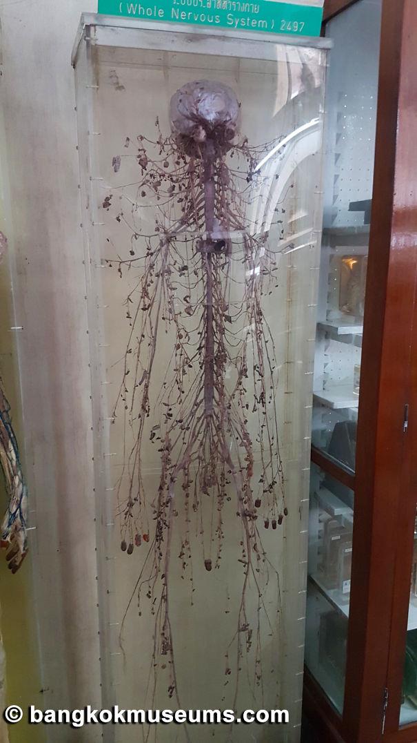 34-Bangkokmuseums-Siriraj-Medical-Museum-20161029_142155-5c940c4bc20a4.jpg