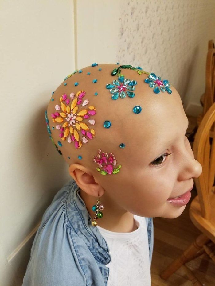 "7-Year-Old Does Not Let Alopecia Stop Her From Celebrating Her School's ""Crazy Hair Day"""