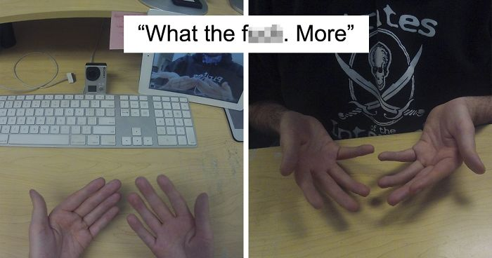 Photoception: Someone Asks A Guy How He Took A Picture Of His Palms, And It Gets Out Of Hand