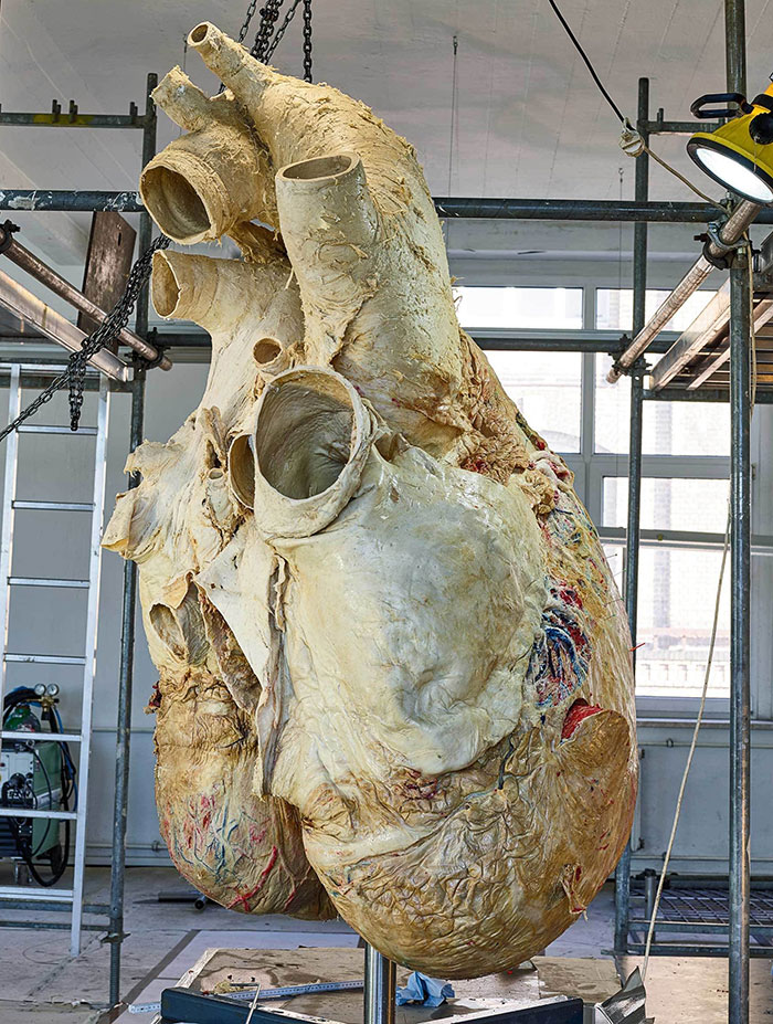 The Heart Of A Blue Whale. It Weighs 440 Lbs