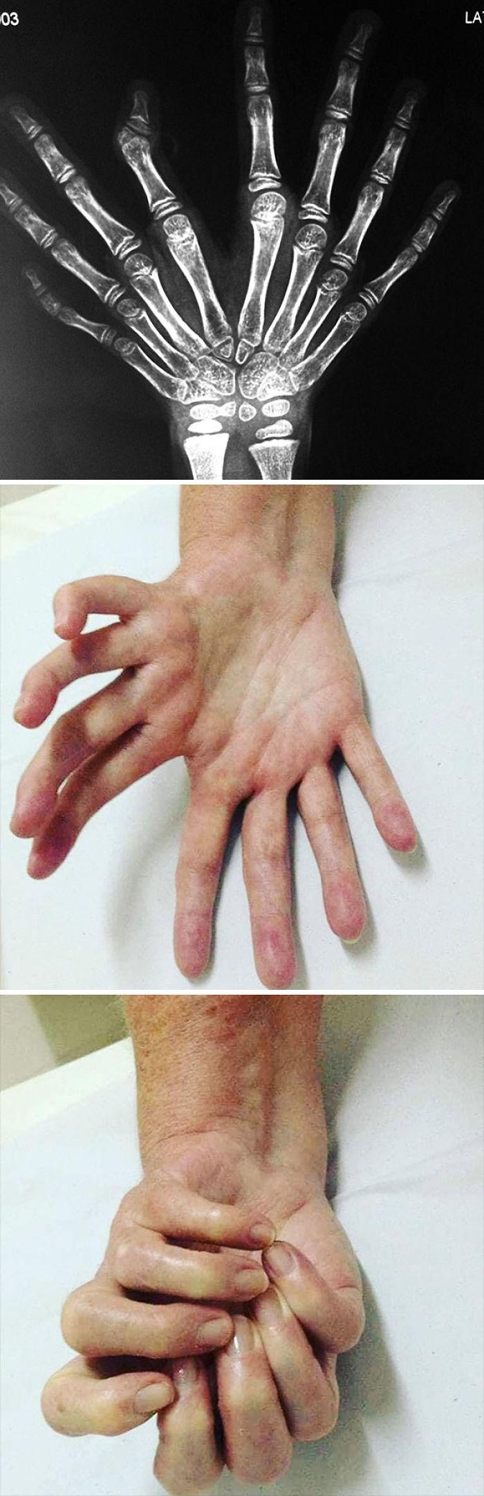 Síndrome de mano en espejo