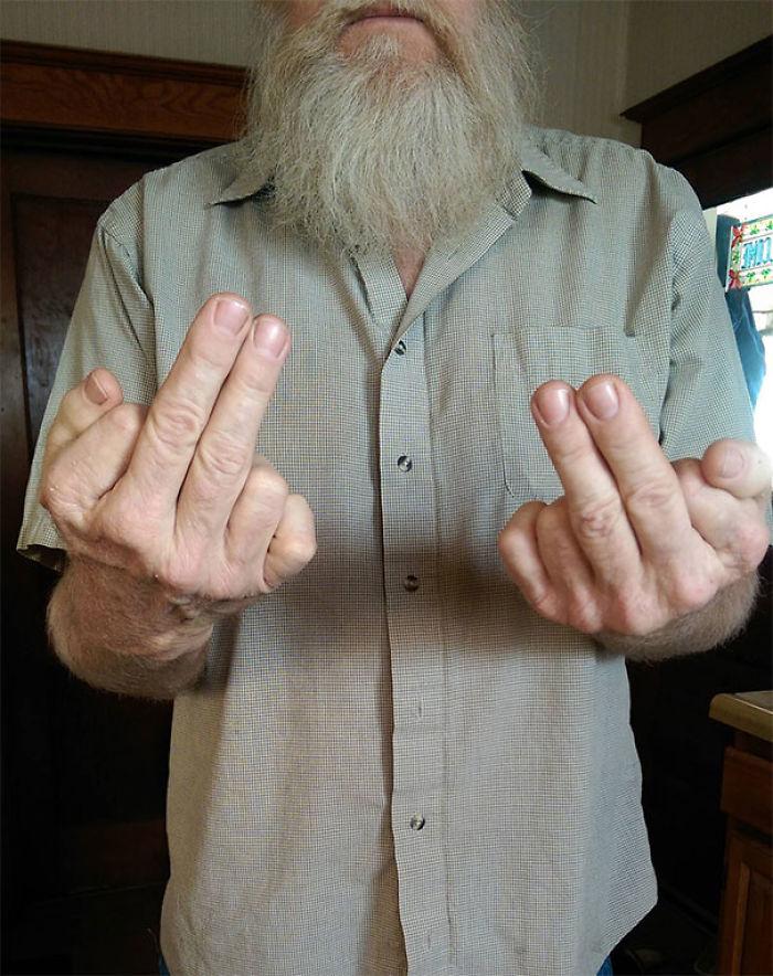 Mi padre tiene 6 dedos en cada mano, usa 2 dedos para hacer la peineta