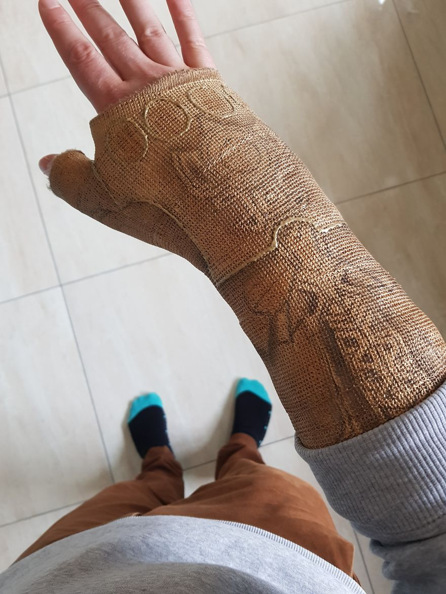 After Breaking My Wrist, I Turned My Plain Cast Into Thanos' Infinity Gauntlet