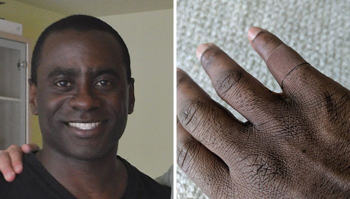 Putting A Bandage That Blends In With His Skin Has Brought Up An Emotional Reaction From This Man
