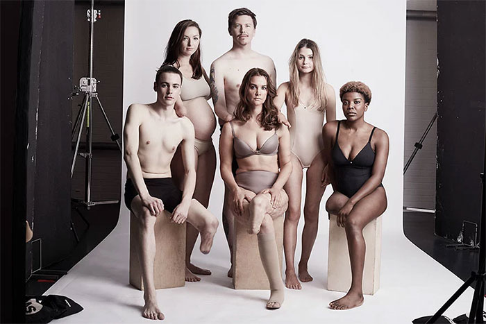 We Photographed 19 People With Limb Differences Aged From 2 To 54 In Body Confidence Shoot