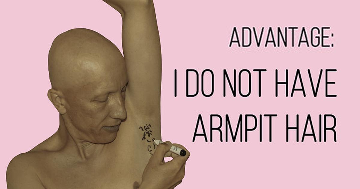My 23 Pics Show The Advantages And Disadvantages Of Having Alopecia Universalis
