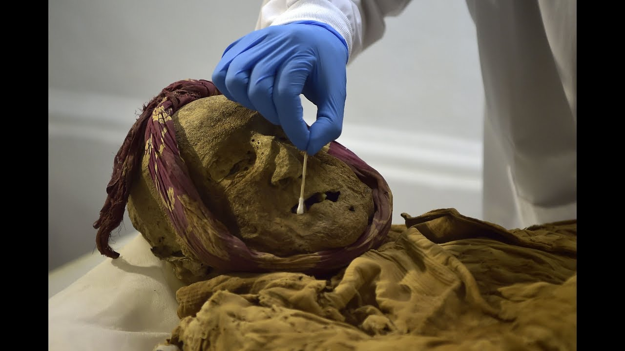 Scientists Hope They Can Cure Arthritis By Studying The Diseased Remains Of A Mummified Body