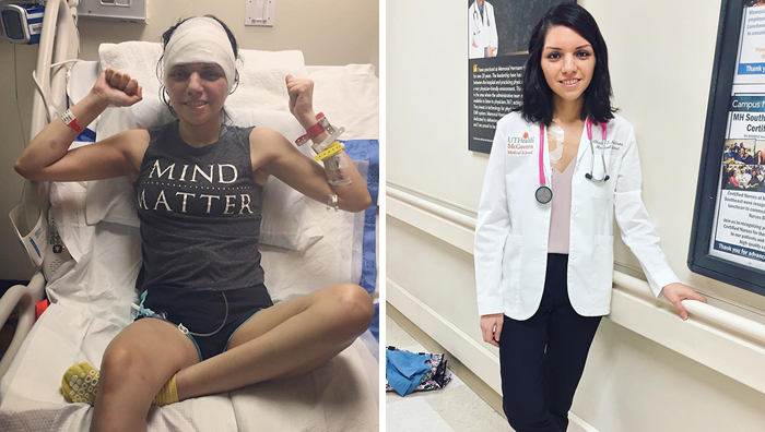 After Surviving 6 Major Brain Surgeries, This Woman Is Aiming To Become A Doctor