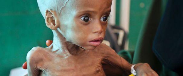 AP-Somalia-Drought3-MEM-170503_12x5_992.jpg