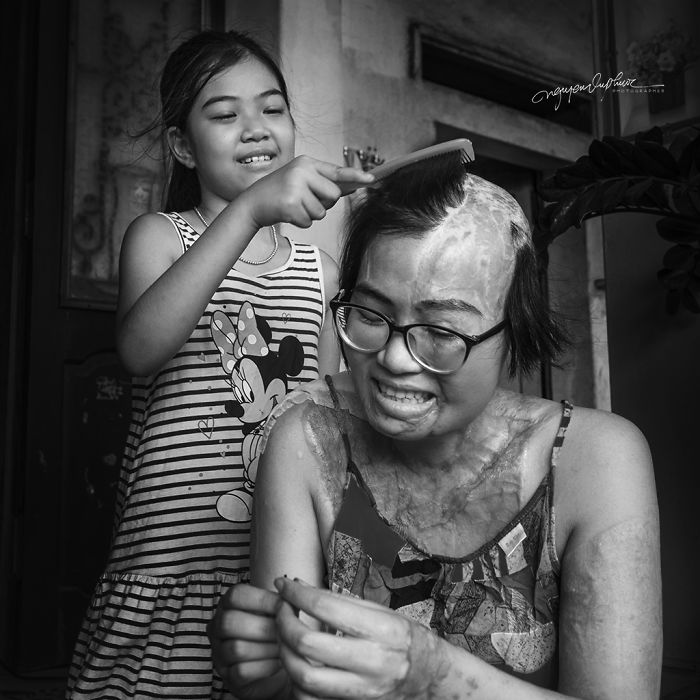 34-Year-Old Mother Survives Her Ex-Husband's Acid Attack And I Want To Share Her Story