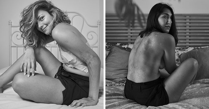 I Show Raw Pictures And Unedited Stories Of People And Their Body Insecurities (19 Pics)