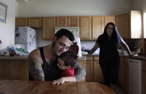 Pria Ini Menghapus Seluruh Tatonya Yang Bermakna Rasis Setelah Menjadi Seorang Ayah