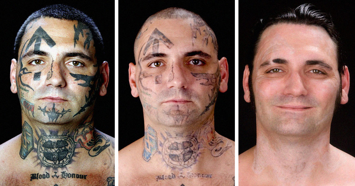Former Skinhead Nazi Got His Racist Facial Tattoos Removed And Proved It's Never Too Late To Change