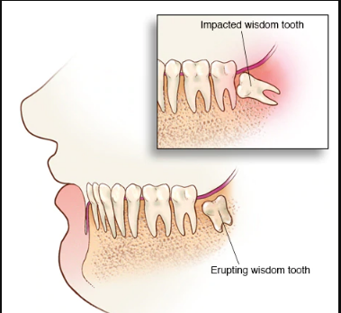 10 Best Home Remedies to Reduce Wisdom Tooth Pain